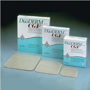 How to Use DuoDERM CGF http://www.greatmedicalsupplies.com/supply~Convatec+(51)~duoderm-cgf-border-sterile-dressing25x255bx-187970.htm